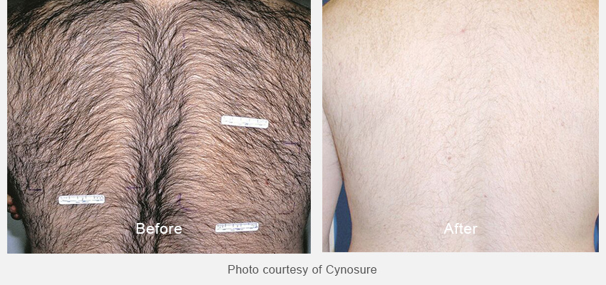 Before and after laser hair removal photos