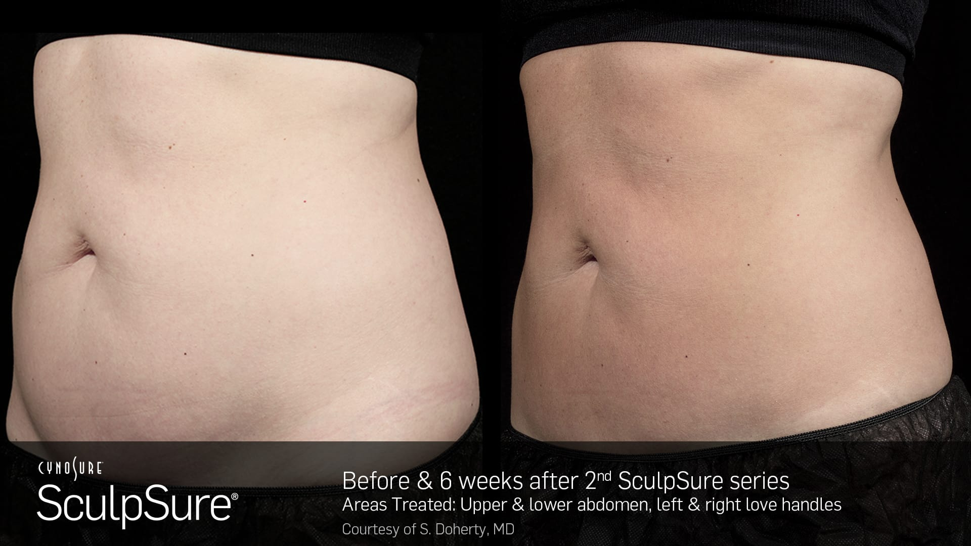 Before and after SculpSure results