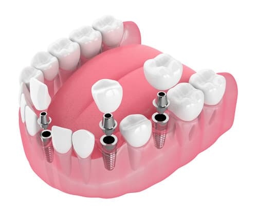 3d Render Of Jaw With Dental Implants Isolated Over White Backgr