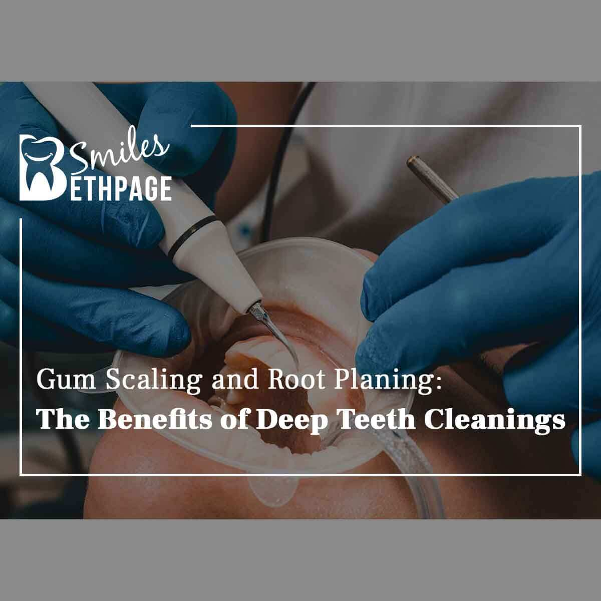 Gum Scaling & Root Planing: The Benefits Of Deep Teeth Cleanings