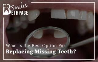 Crucial Tips To Keep Dental Bridges, Crowns, & Veneers In Great Shape