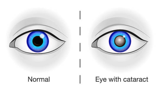 Cataract Illustration
