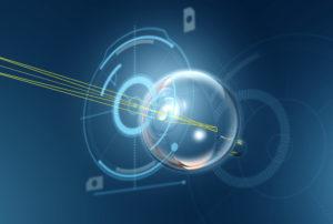 advanced cataract surgery concept graphic