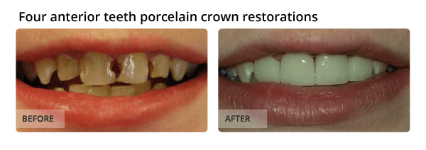 Four anterior teeth porcelain crown restorations