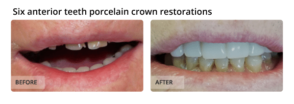 Six anterior teeth porcelain crown restorations