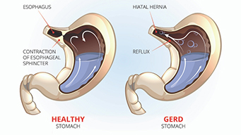 Diagram of healthy stomach on left, GERD stomach on right.