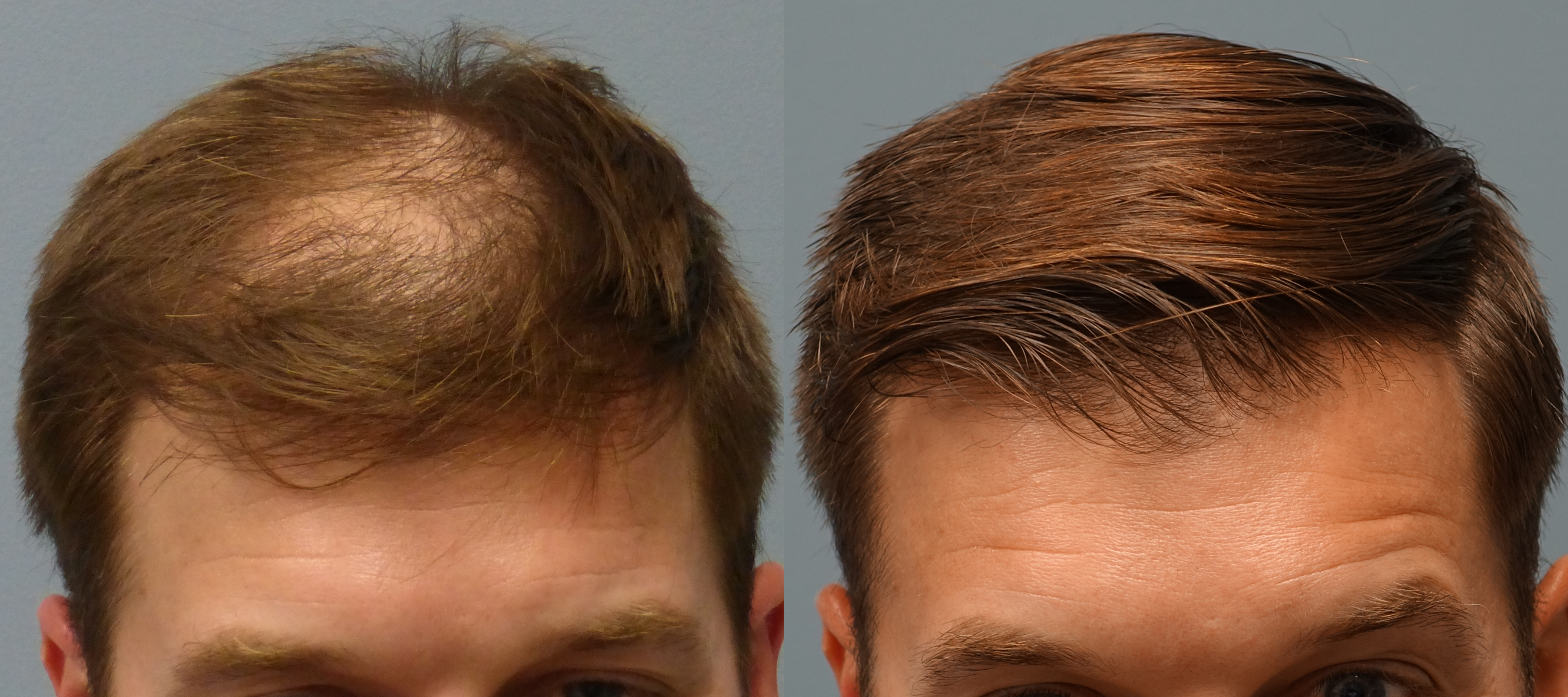 Before-and-After-Neograft-Hair-Transplant-