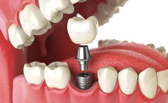 Dental Implants in roswell ga