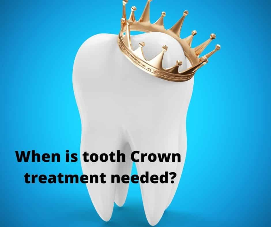 When is tooth Crown treatment needed