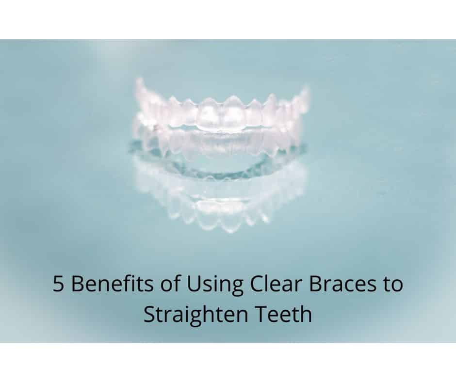 5 Benefits of Using Clear Braces to Straighten Teeth