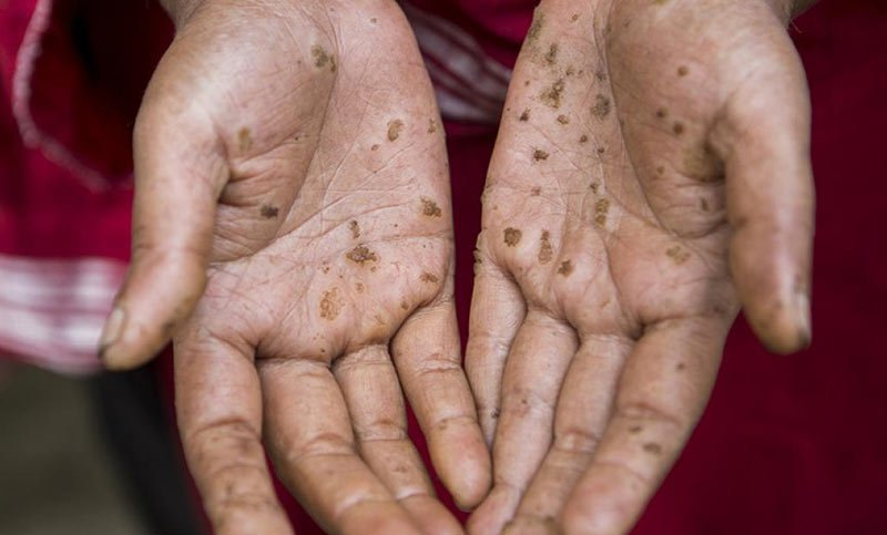 Bangladeshi women showing her hands showing effects of arsenic poisning
