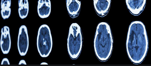 Homeopathic Treatment of Brain Hemorrhage: Several Cases