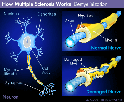 Progressive Multiple Sclerosis Cured with Homeopathy
