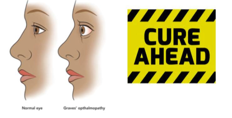 Alternative Treatment of Graves Disease | Basedow
