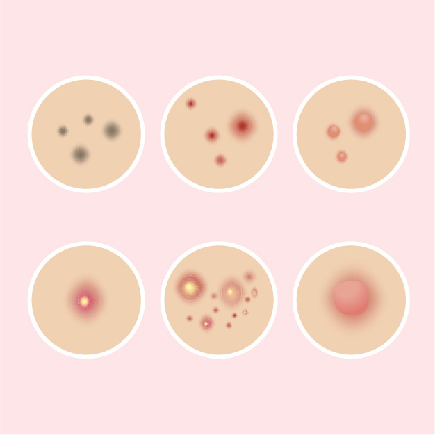 Guide: Different Acne Types, And How To Treat 'Em