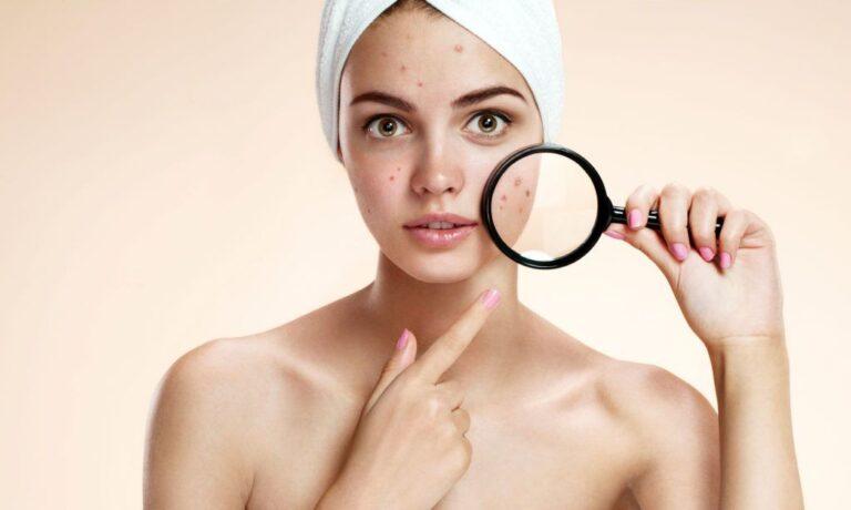 【保養小教室】毛孔粗大、抗痘保養關鍵就是它!為什麼水楊酸可以一抹還原柔嫩肌呢?