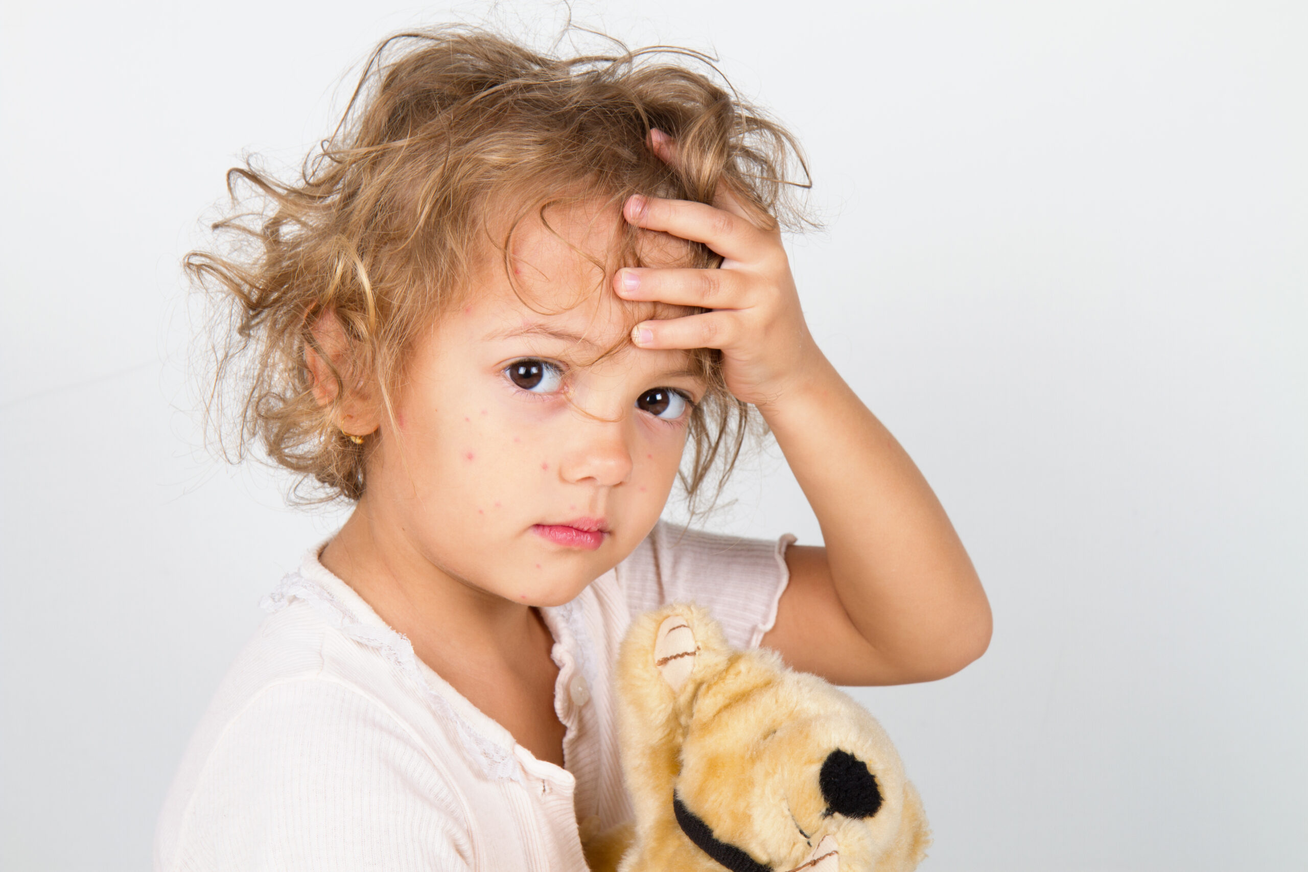 Natural Remedies for Common Childhood Ailments: Part Two