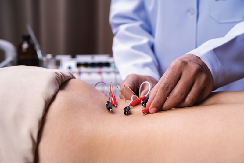 Amp Up the Healing With Electroacupuncture