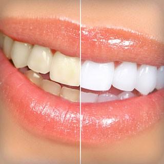 Oral Hygiene & Bright Smiles – Avoiding Trendy Techniques