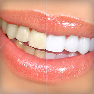 Oral Hygiene & Bright Smiles – Avoiding Trendy Techniques