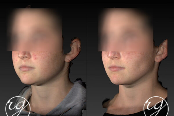 Advanced Injectables - Chin - Jaw - Mid-Face