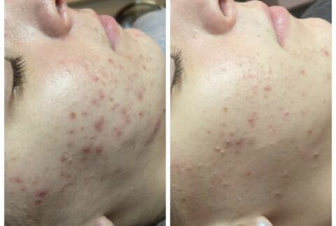 Acne & Rosacea Treatment