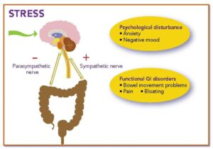 Stress and digestive or GI issues