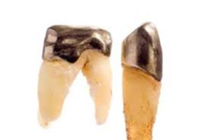 Dental Gold Root