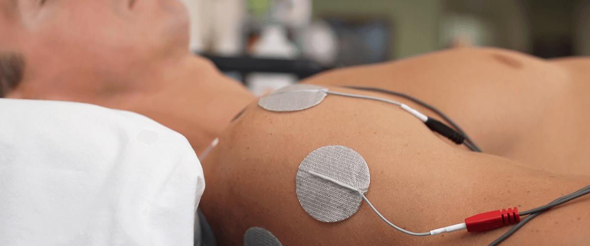 Electrical Stimulation Battle Creek, Kalamazoo, Mattawan, Plainwell & Portage, MI