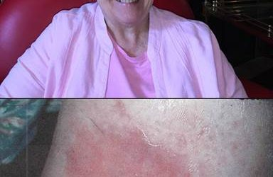 Chronic Open Wound Healed