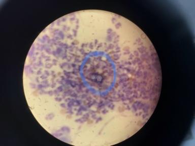 Blastomycosis in the Upper Peninsula
