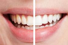 Richmond Dentist - Cosmetic Dentistry