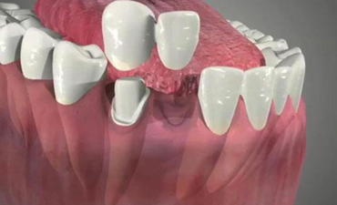 dental-cantilever