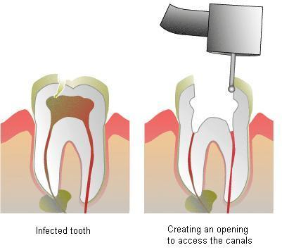 root-canal-1