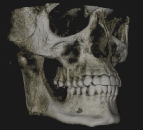 Cone Beam CT - 3D scanning, Oral & Maxillofacial Surgeons Newcastle