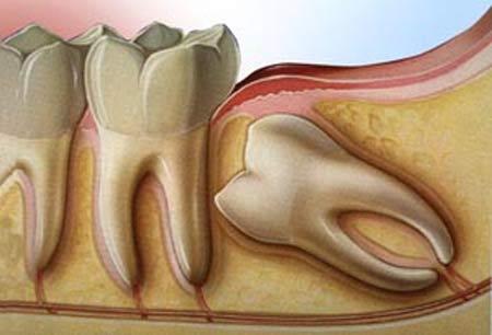 wisdom teeth surgery Newcastle - wisdom teeth removal by oral surgeon