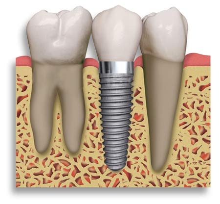 Dental Implants Newcastle with Wood St Specialists Dr Mehanna & Dr Yang