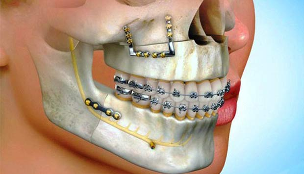 Corrective Jaw Surgery Newcastle, also known as Orthognathic Surgery
