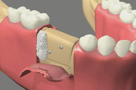 oral bone grafting surgery