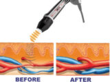 RejuvaWAVE® ED Shockwave Peyronie's therapy Boca Raton West Palm Beach