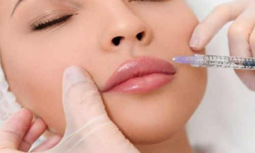 dermal fillers by plastci and cosmetic surgery associates- Dr zain