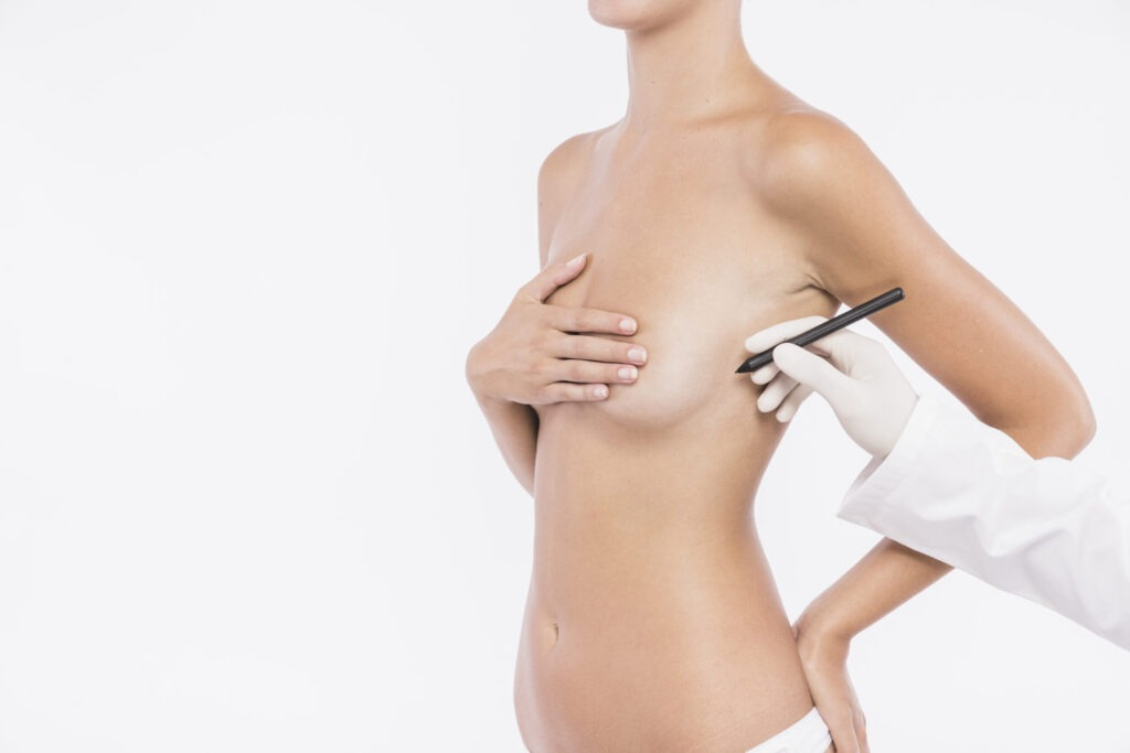 breast reduction by plastci and cosmetic surgery associates- Dr zain