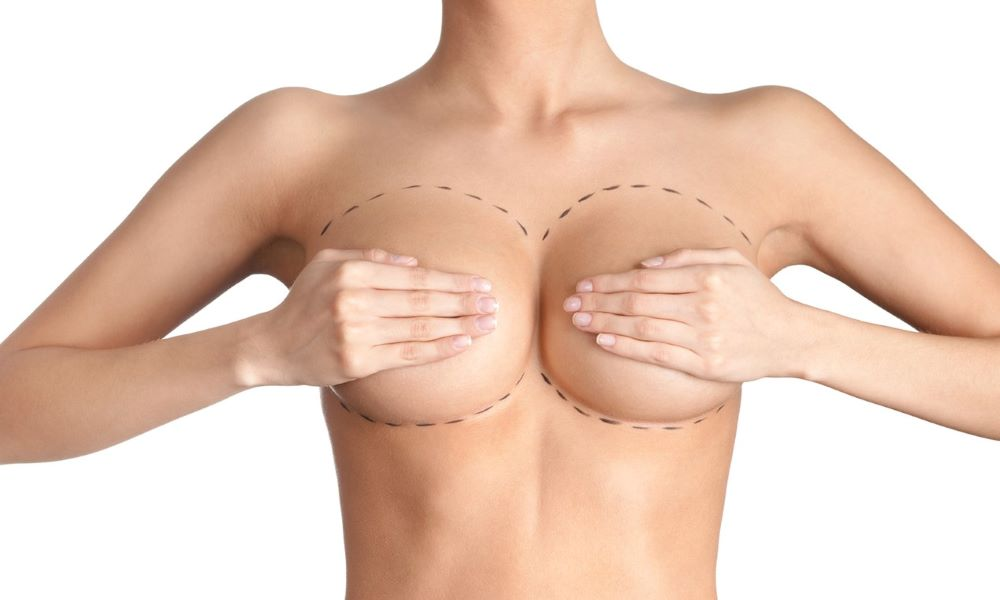 Breast augmentation plastci and cosmetic surgery associates