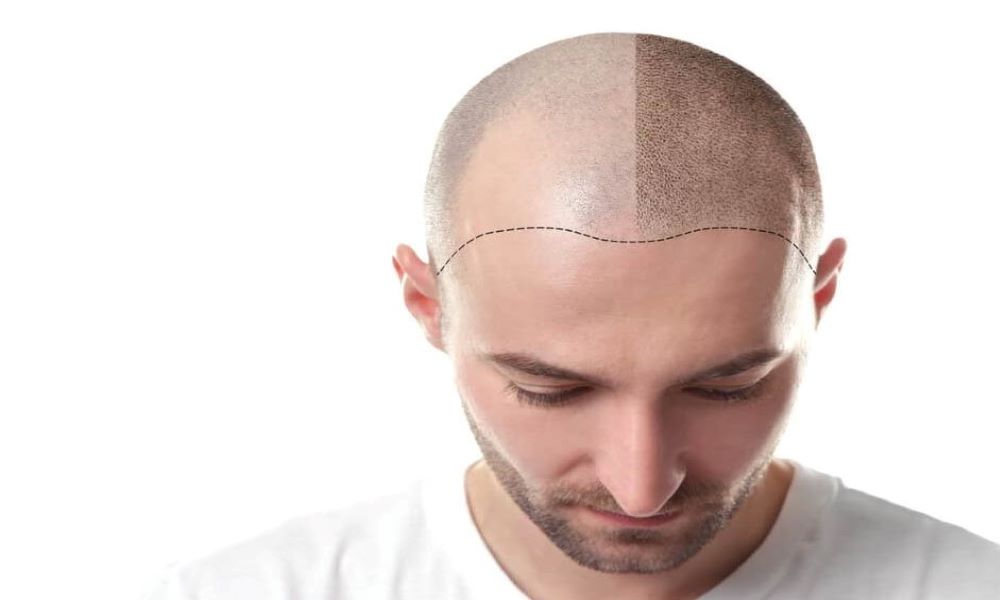 Hair Transplant in PCSA