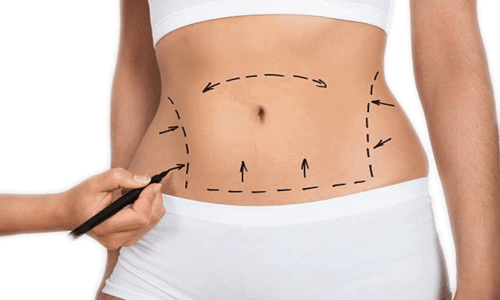 Tummy-Tuck procedure