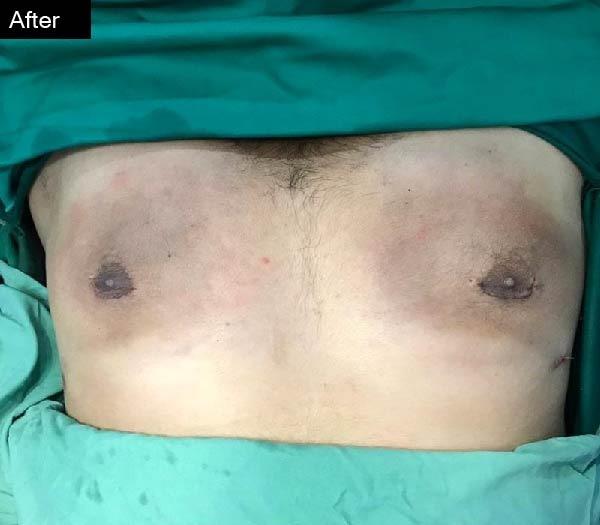 Gyaecomastia surgery by Dr Zain