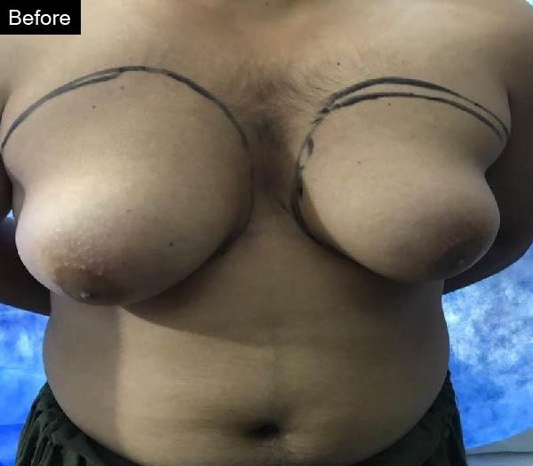 Gynecomastia surgery by Dr Zain