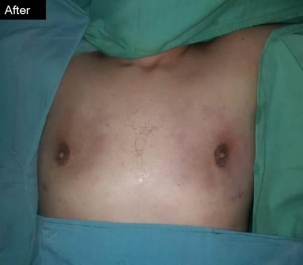 gynaecomastia surgery by Dr Zain