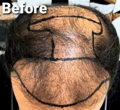 Best Hair Transplant in Lahore