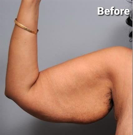 Arm Lift Surgery / Brachioplasty